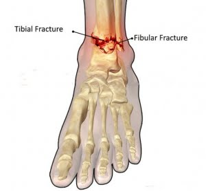 Ankle-Joint-Fracture