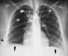 sistolik ve diastolik kan basıncı nedir tarihinde Tıp