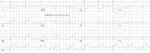 sag-EKG-Inf-Post-STEMI-v-4-6R