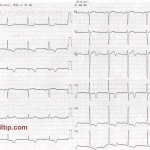 EKG 0001