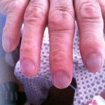 Romatoid Artrit Nodülleri