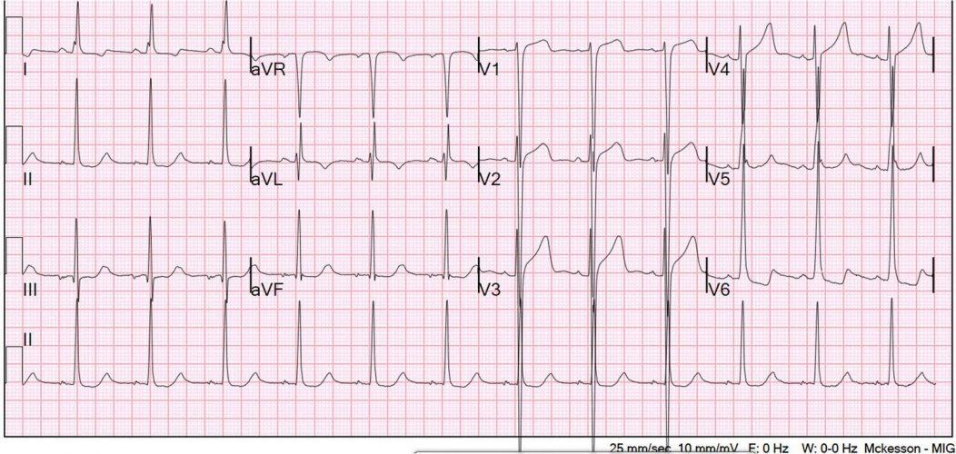 Senkop Hastasında Korkulması Gereken Hipertrofik EKG