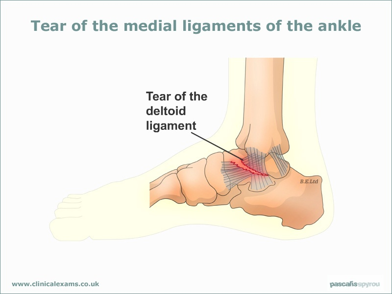 ayak bilegi deltoid ligament