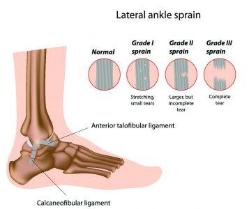 ayak bilegi-ligament