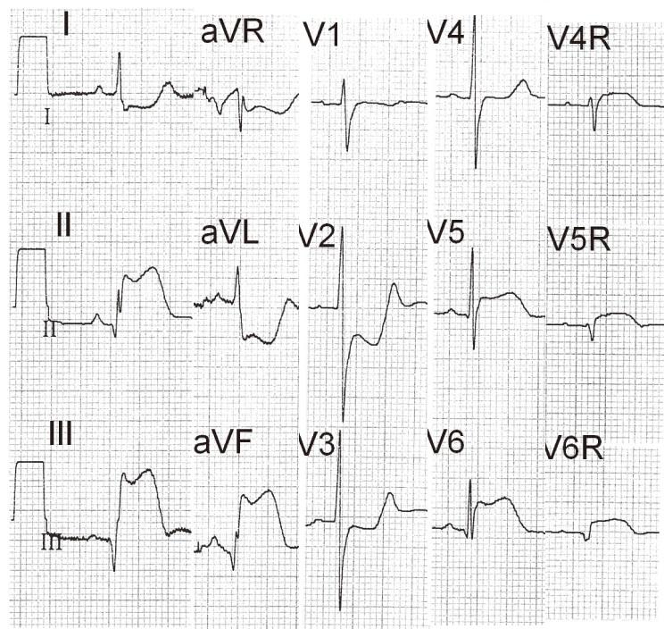 sag-ventrikul-Mi01