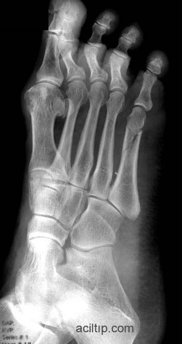 metatars-fracture-5