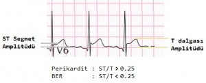 Pericarditis ST-T