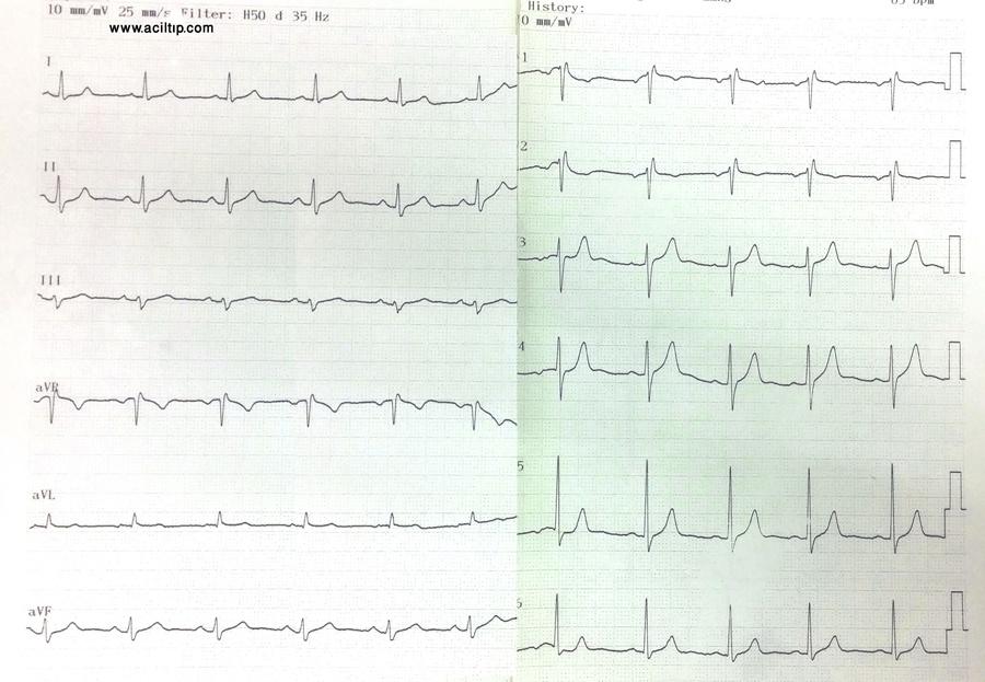 EKG sag dal (2)