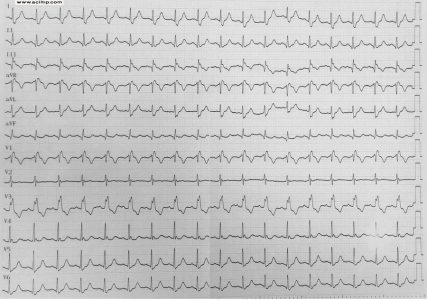 EKG sag dal, sinus taşikardisi