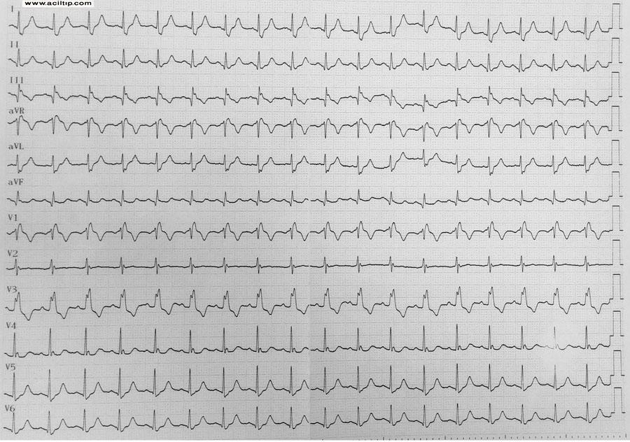 EKG sag dal