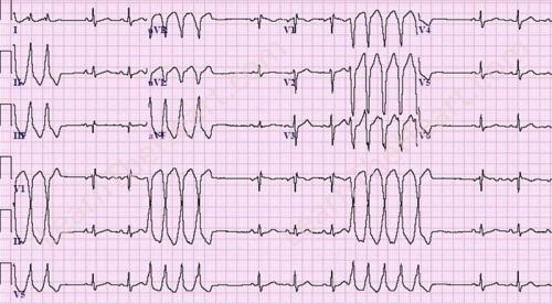 Monomorphic Non-Sustained Ventricular Tachycardia