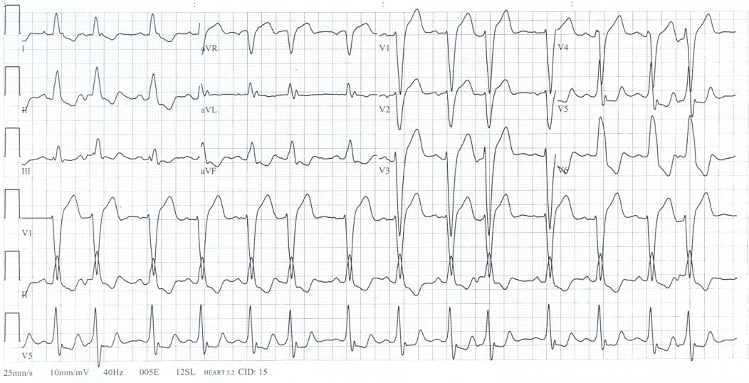 lbbb-left-bundle-branch